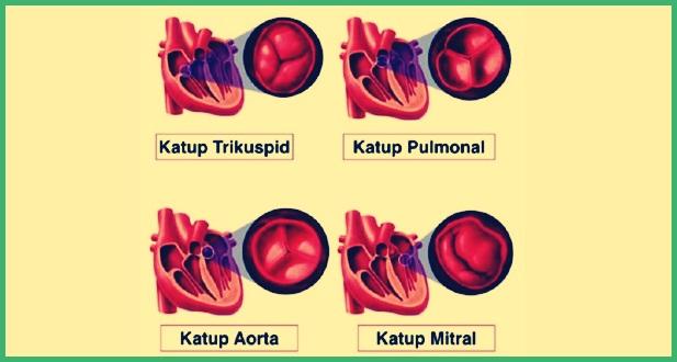 Jenis Katup Jantung