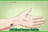 Arti Mimpi tangan terluka